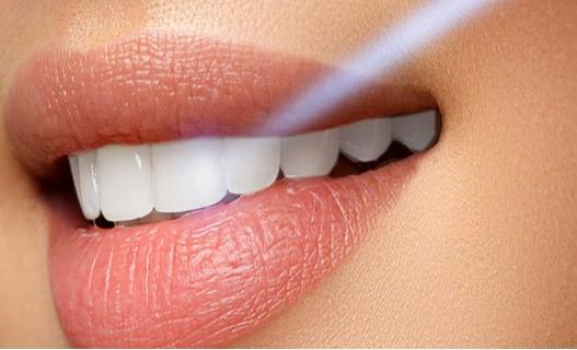 Poliranje zuba kupon