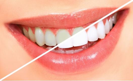 Olovka za zube upotreba