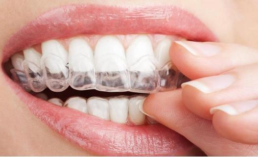 Sredstva za izbeljivanje zuba