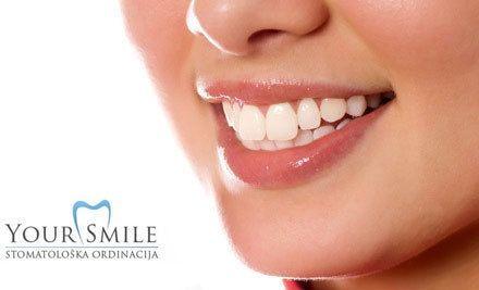 Beljenje zuba preparati