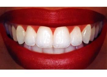 Trakice za izbeljivanje zuba dm cena