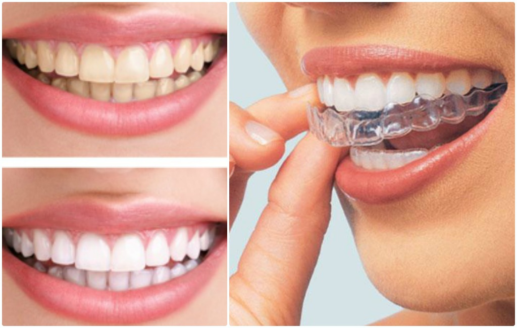 Kurkuma za beljenje zuba