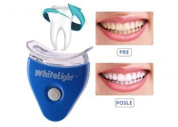 Како уклонити плак са зуба